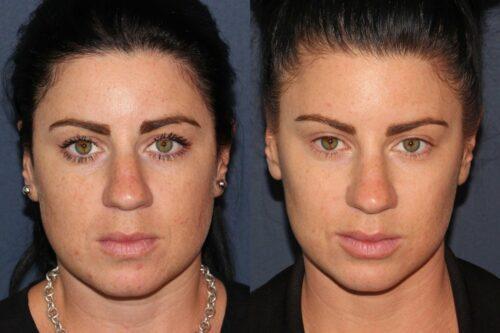 preventative botox results in san diego,CA