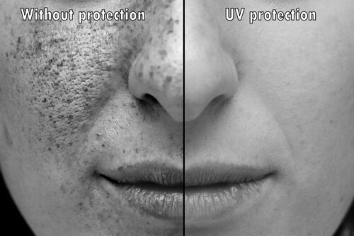 Image comparing sun damaged skin and skin with UV protection