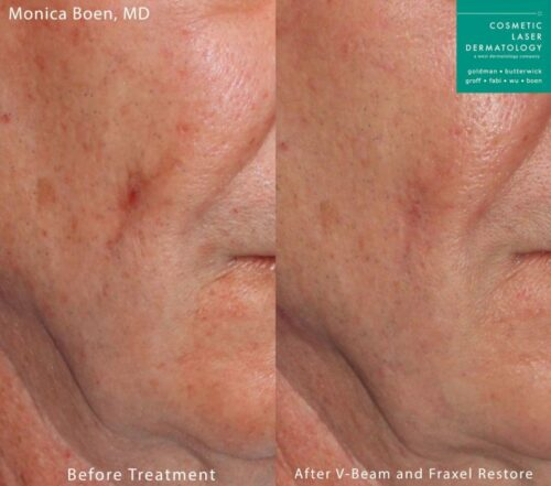 fraxel restore laser treatment results in San Diego, CA