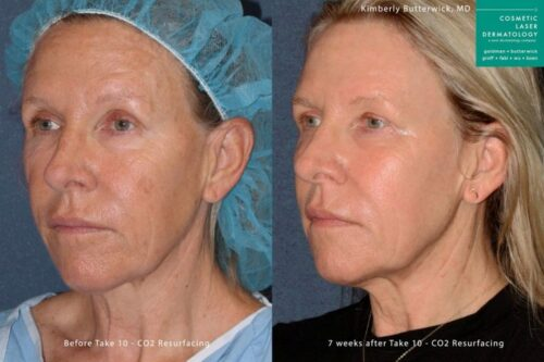 laser treatment results from San Diego Dermatologist