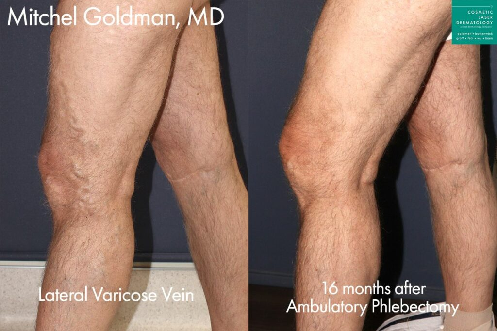 Ambulatory phlebectomy to remove varicose veins by Dr. Goldman. Disclaimer: Results may vary from patient to patient. Results are not guaranteed.
