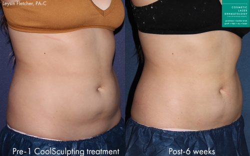 CoolTone body sculpting treatment results in San Diego, CA