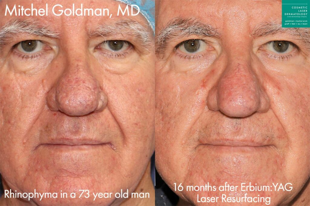 Erbium laser to treat rhinophyma by Dr. Goldman. Disclaimer: Results may vary from patient to patient. Results are not guaranteed.