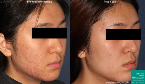 patient before and after results from a microneedling treatment at our San Diego office