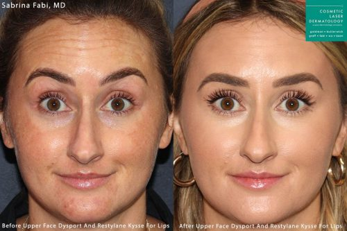 patient results from a Neuromodulator treatment in San Diego, CA