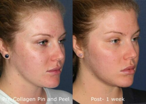 patient before and after results from a chemical peel from our San Diego medical spa