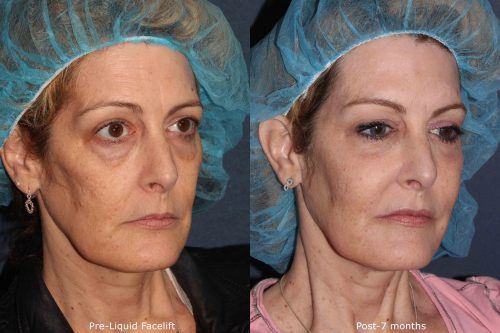 before and after of patient who received a combination of cosmetic treatments from our dermatologists in San Diego