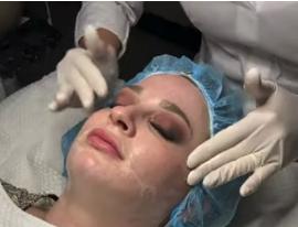 patient receiving a dermaplaning skin exfoliation treatment in san diego, ca