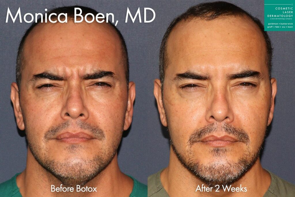 Botox to treat facial wrinkles by Dr. Boen. Disclaimer: Results may vary from patient to patient. Results are not guaranteed.