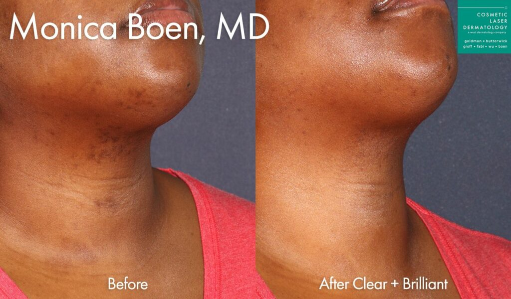Clear + Brilliant laser to treat brown spots on chin and neck by Dr. Boen. Disclaimer: Results may vary from patient to patient. Results are not guaranteed.