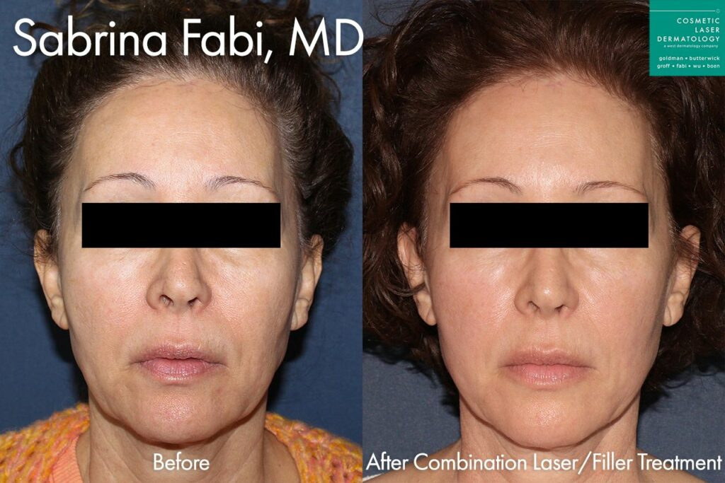 Combination of laser and filler treatments for full skin rejuvenation by Dr. Fabi. Disclaimer: Results may vary from patient to patient. Results are not guaranteed.
