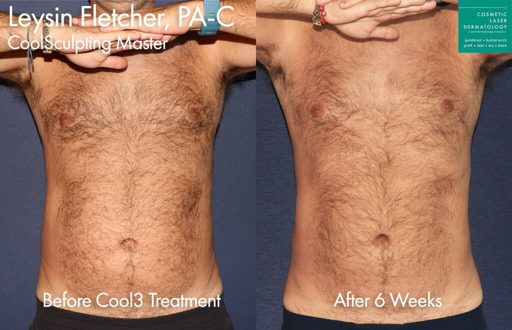 CoolSculpting Elite and CoolTone to sculpt the abdomen by Leysin Fletcher, PA-C. Disclaimer: Results may vary from patient to patient. Results are not guaranteed.