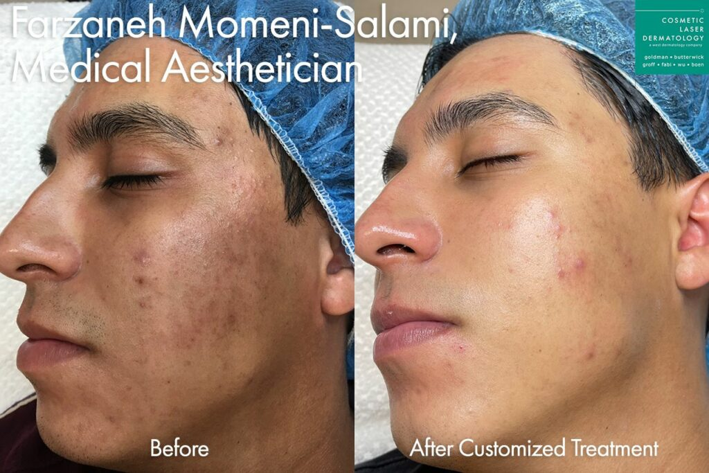 Custom acne treatment to minimize breakouts by Farzaneh. Disclaimer: Results may vary from patient to patient. Results are not guaranteed.