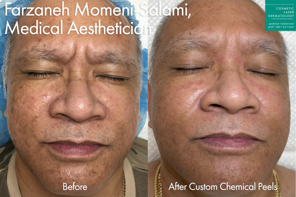 Custom peel for skin rejuvenation by Farzaneh. Disclaimer: Results may vary from patient to patient. Results are not guaranteed.