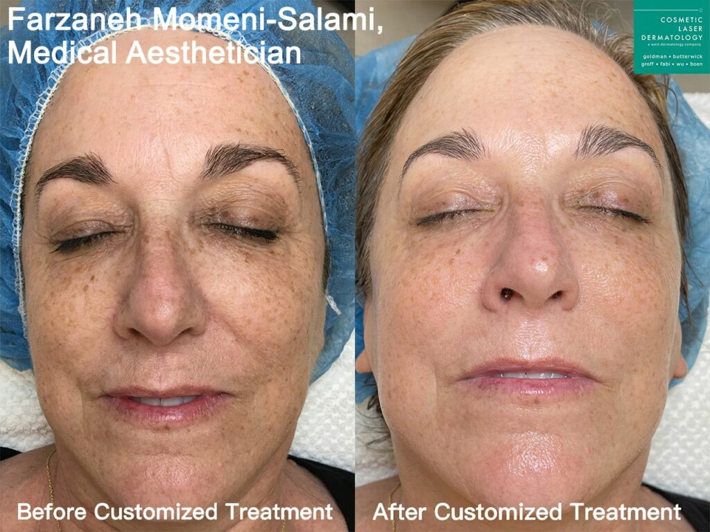 Custom treatment to address sun damage by Farzaneh. Disclaimer: Results may vary from patient to patient. Results are not guaranteed.