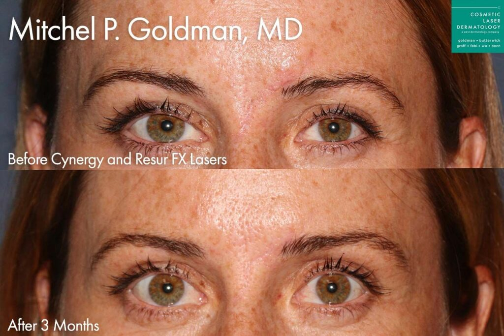 Cynergy and ResurFX lasers to treat forehead scar by Dr. Goldman. Disclaimer: Results may vary from patient to patient. Results are not guaranteed.