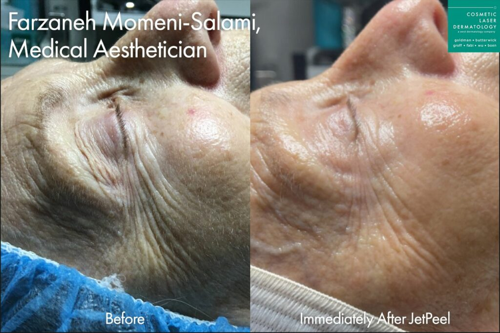 JetPeel to reduce lines around the eyes by Farzaneh. Disclaimer: Results may vary from patient to patient. Results are not guaranteed.