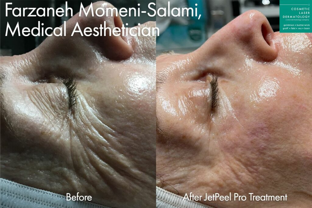 JetPeel to reduce deep creases around the eyes by Farzaneh. Disclaimer: Results may vary from patient to patient. Results are not guaranteed.