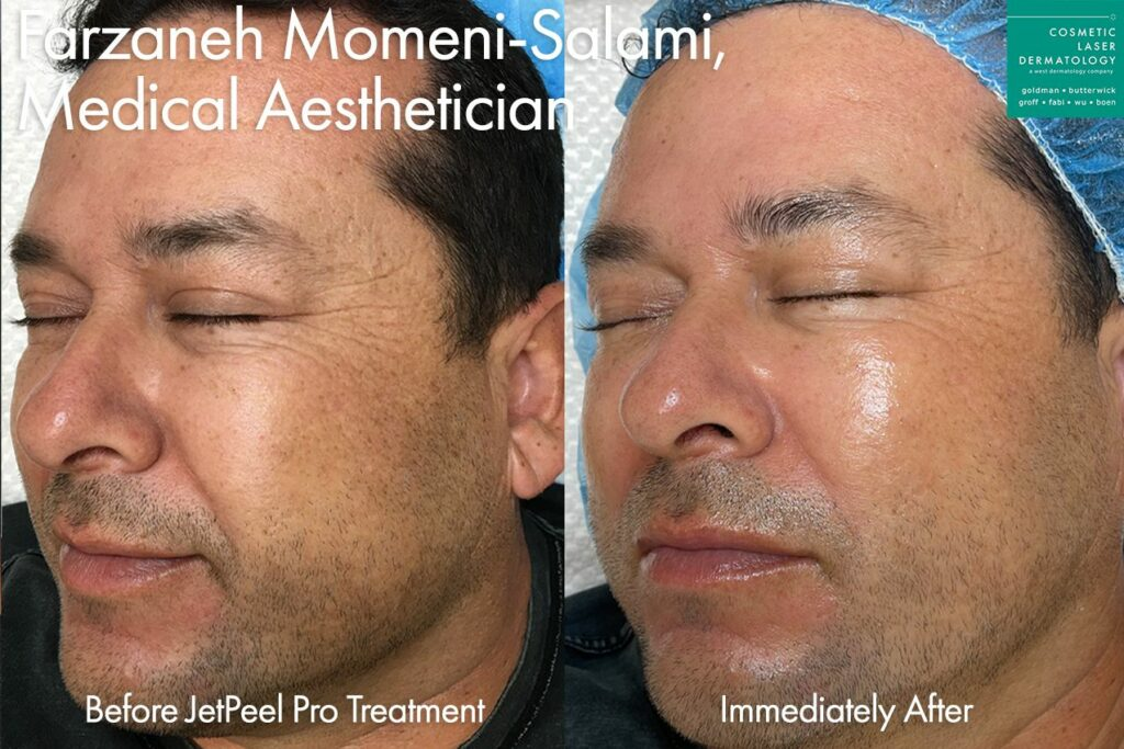 JetPeel for full face rejuvenation by Farzaneh. Disclaimer: Results may vary from patient to patient. Results are not guaranteed.