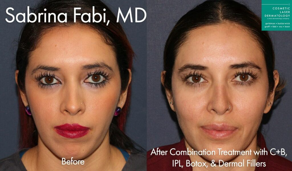 Combination of injectables and lasers for full skin rejuvenation by Dr. Fabi. Disclaimer: Results may vary from patient to patient. Results are not guaranteed.