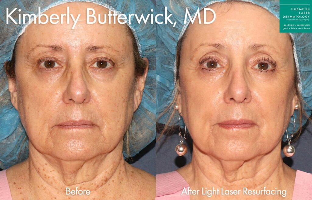 Light laser resurfacing for skin rejuvenation by Dr. Butterwick. Disclaimer: Results may vary from patient to patient. Results are not guaranteed.