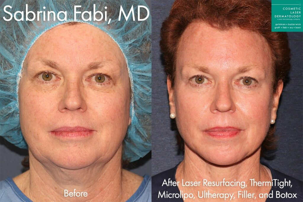 Laser Resurfacing, Micro Lipo, ThermiTight, Ultherapy, Fillers, and Botox for full rejuvenation by Dr. Fabi. Disclaimer: Results may vary from patient to patient. Results are not guaranteed.