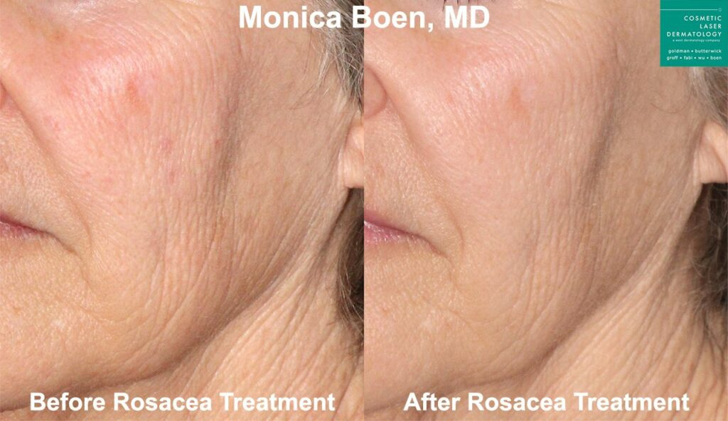 Laser treatment for rosacea by Dr. Boen. Disclaimer: Results may vary from patient to patient. Results are not guaranteed.