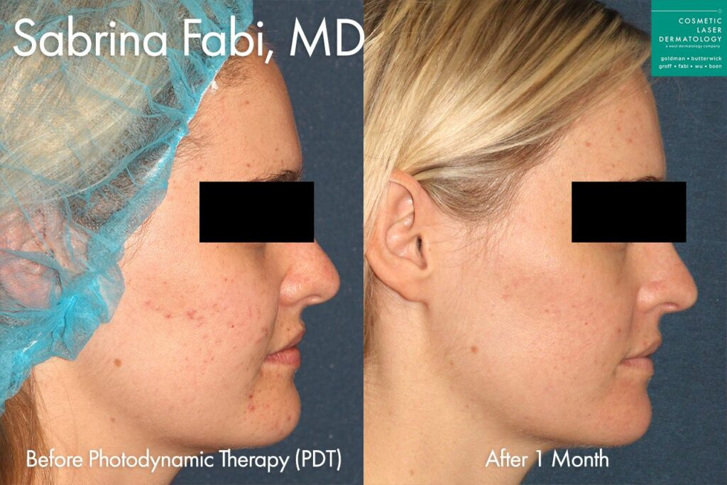 Photodynamic therapy to treat active acne by Dr. Fabi.  Disclaimer: Results may vary from patient to patient. Results are not guaranteed.