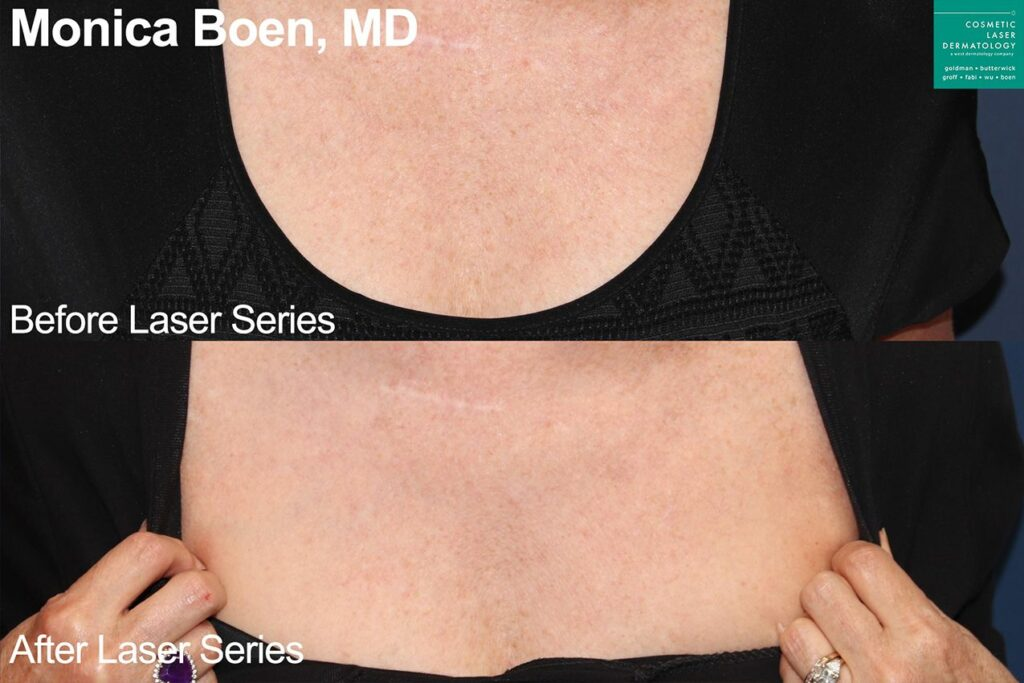 PicoWay Fusion laser to treat sun damage on chest by Dr. Boen. Disclaimer: Results may vary from patient to patient. Results are not guaranteed.