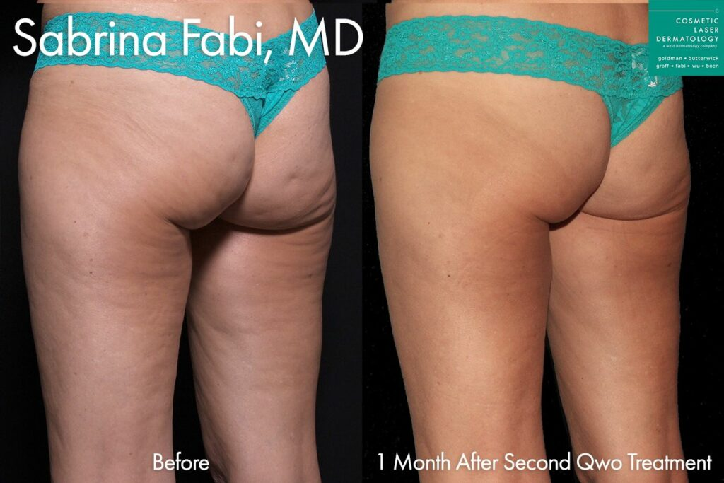 Qwo injections to treat cellulite on the buttocks by Dr. Fabi. Disclaimer: Results may vary from patient to patient. Results are not guaranteed.