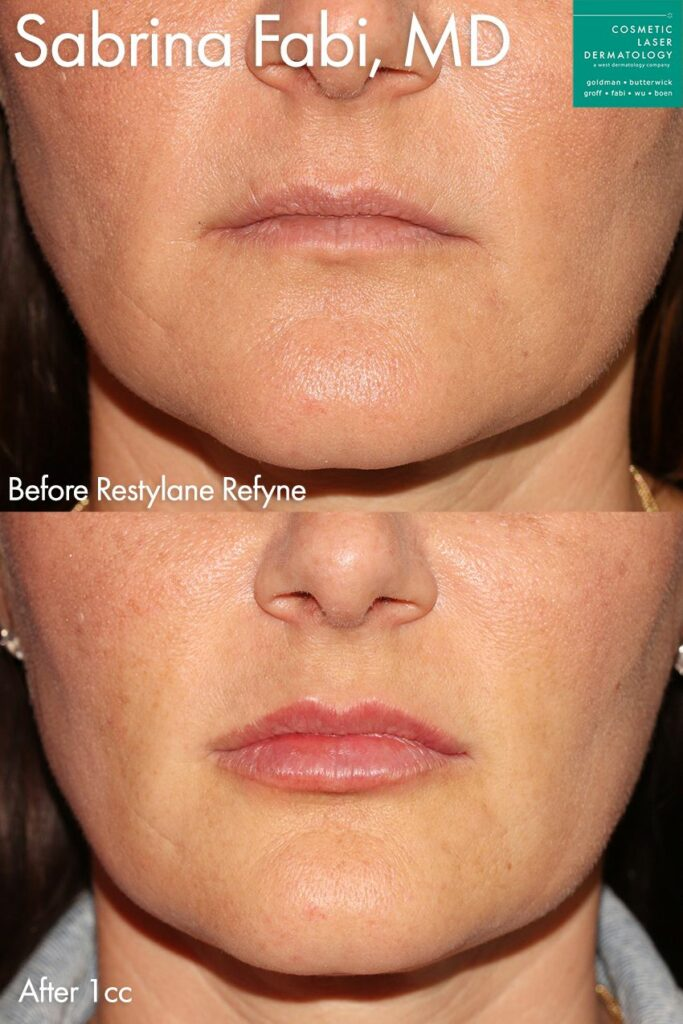 Restylane Refyne for adding shape and fullness to the lips by Dr. Fabi.  Disclaimer: Results may vary from patient to patient. Results are not guaranteed.