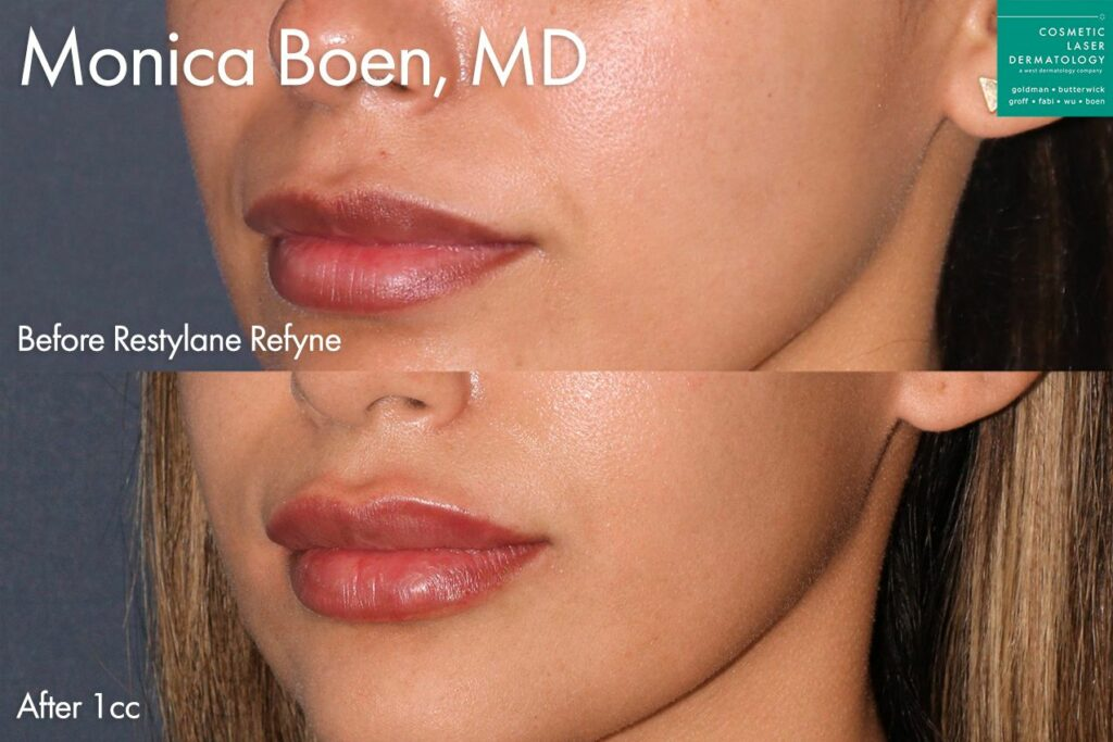 Restylane Refyne to add volume and shape to the lips by Dr. Boen. Disclaimer: Results may vary from patient to patient. Results are not guaranteed.