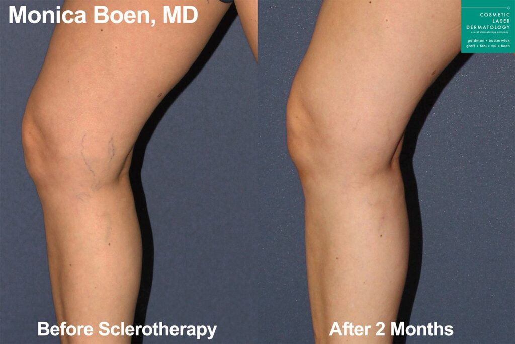 Sclerotherapy to treat visible leg veins by Dr. Boen. Disclaimer: Results may vary from patient to patient. Results are not guaranteed.