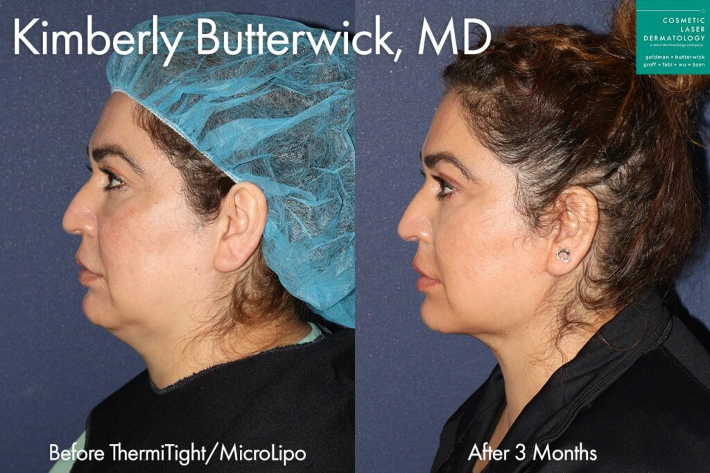 ThermiTight and Micro Liposuction for jawline and neck contouring by Dr. Butterwick. Disclaimer: Results may vary from patient to patient. Results are not guaranteed.