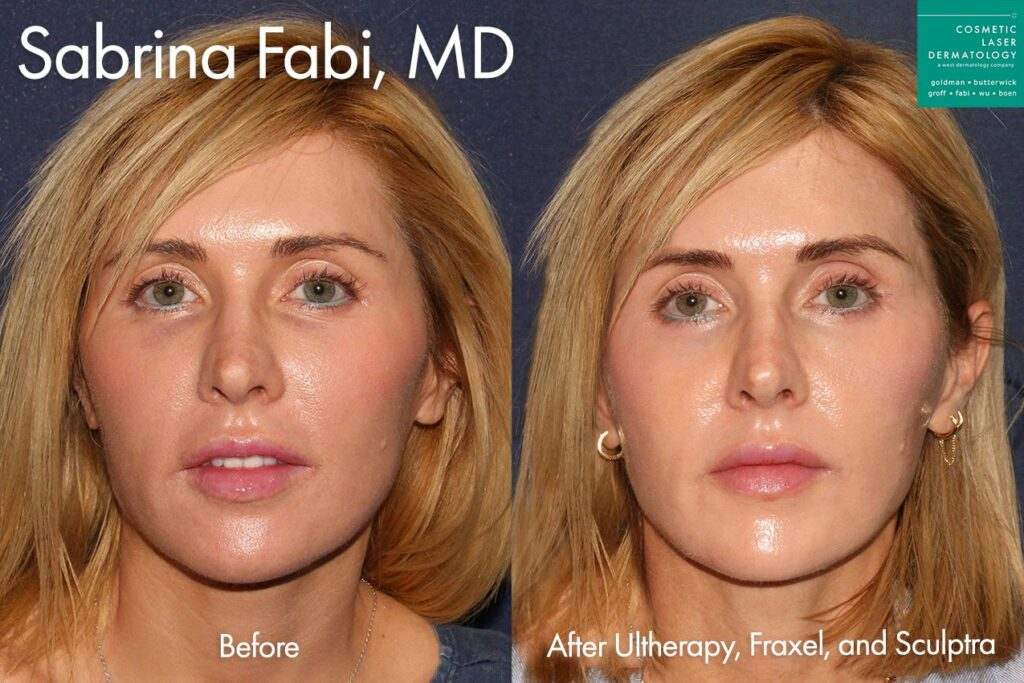 Ultherapy, Fraxel, and Sculptra to tighten and refresh the skin by Dr. Fabi. Disclaimer: Results may vary from patient to patient. Results are not guaranteed.