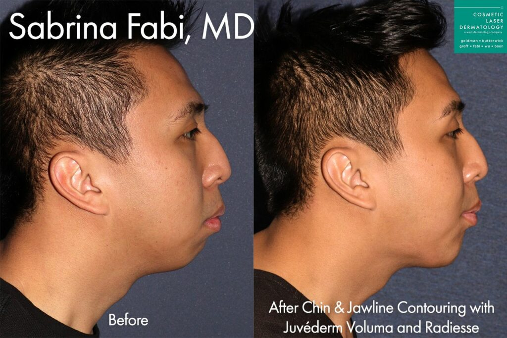 Voluma and Radiesse used to contour the chin and jawline by Dr. Fabi. Disclaimer: Results may vary from patient to patient. Results are not guaranteed.