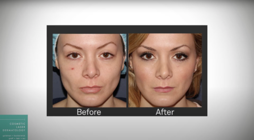 Images before and after voluma a facial filler for a youthful experience, San Diego, CA.