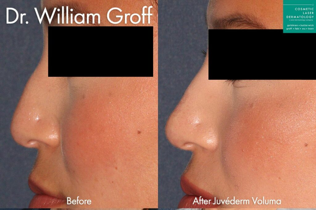 Juvederm Voluma to remove hump from nasal bridge by Dr. Groff. Disclaimer: Results may vary from patient to patient. Results are not guaranteed.