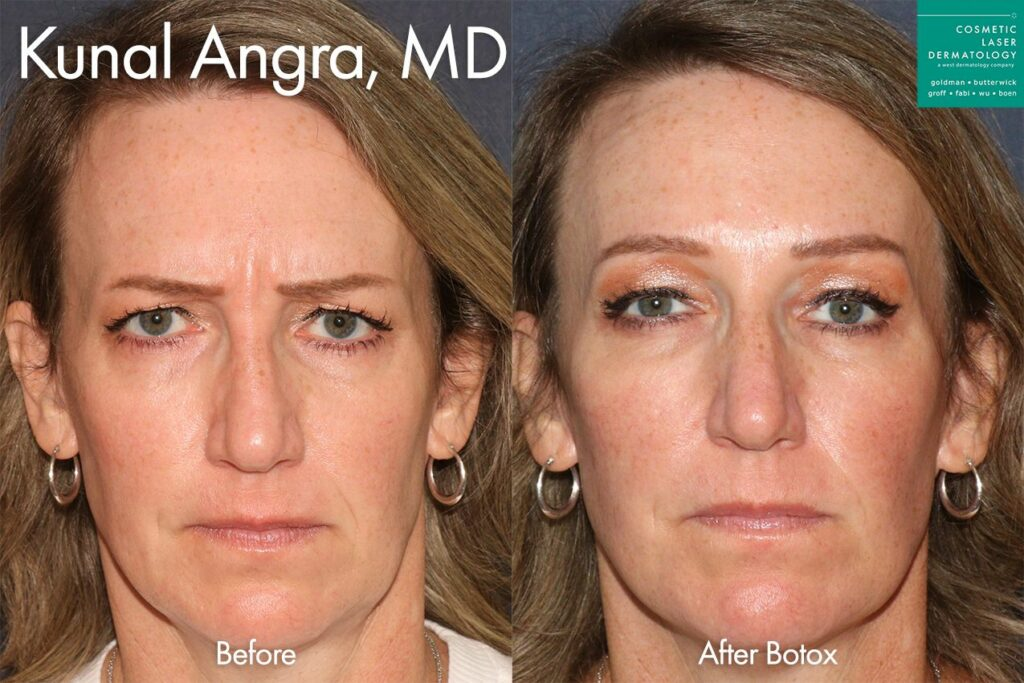 Botox to treat wrinkles on forehead by Dr. Angra. Disclaimer: Results may vary from patient to patient. Results are not guaranteed.