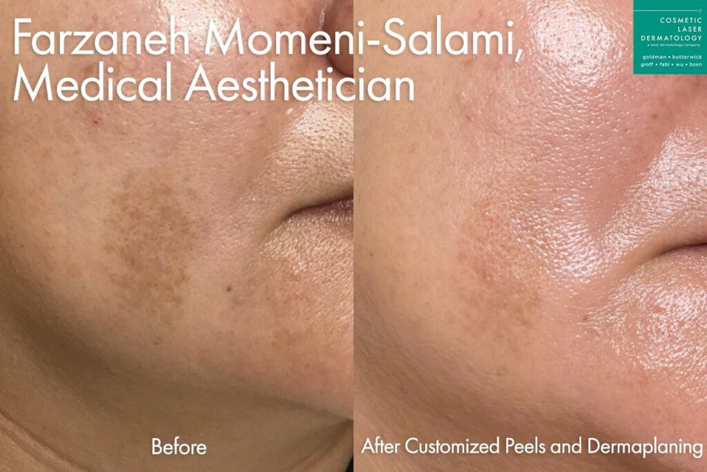 Custom peel to treat melasma on cheek by Farzaneh. Disclaimer: Results may vary from patient to patient. Results are not guaranteed.