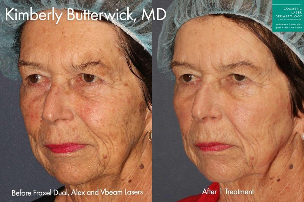 Fraxel, Alexandrite, Vbeam lasers to treat sun damage on face by Dr. Butterwick. Disclaimer: Results may vary from patient to patient. Results are not guaranteed.