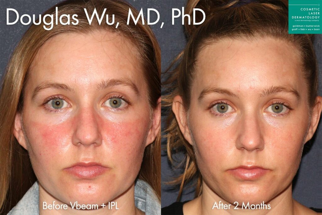 IPL treatment to reduce symptoms of rosacea by Dr. Wu. Disclaimer: Results may vary from patient to patient. Results are not guaranteed.