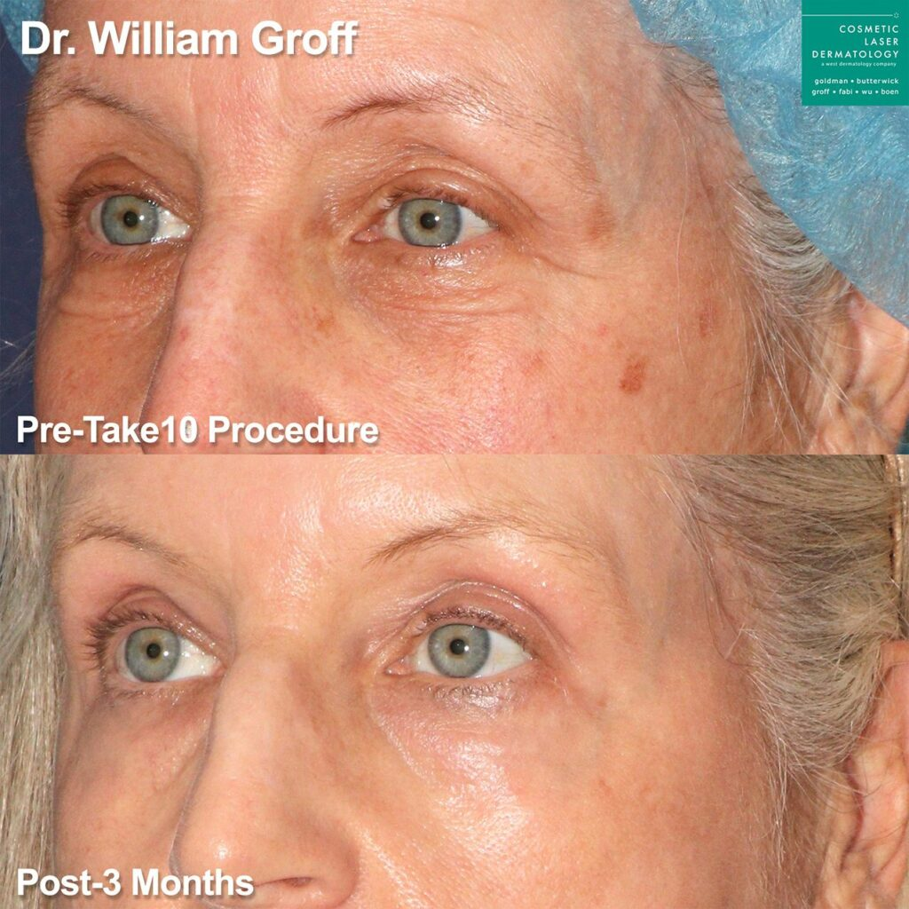 Laser resurfacing to rejuvenate area around the eyes by Dr. Groff. Disclaimer: Results may vary from patient to patient. Results are not guaranteed.