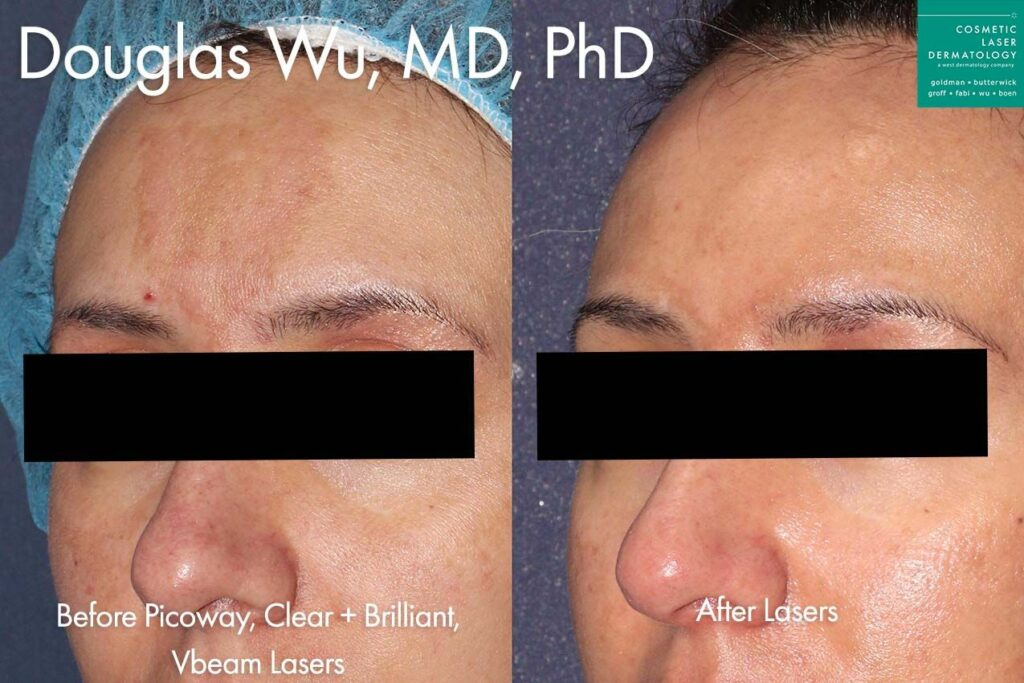 Picoway, Clear+Brilliant, Vbeam lasers used to treat melasma on forehead by Dr. Wu. Disclaimer: Results may vary from patient to patient. Results are not guaranteed.