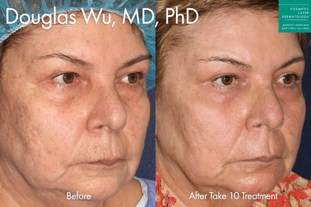 Take 10 treatment to rejuvenate the appearance by Dr. Wu. Disclaimer: Results may vary from patient to patient. Results are not guaranteed.