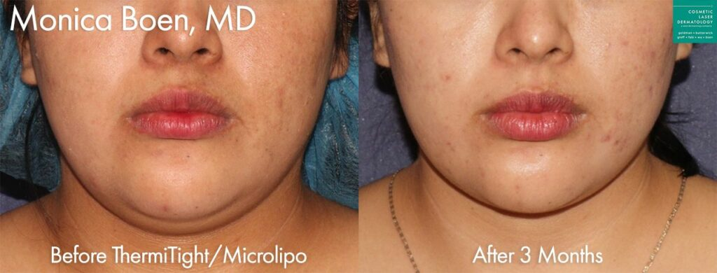 ThermiTight and Micro-lipo to contour the chin and jawline by Dr. Boen. Disclaimer: Results may vary from patient to patient. Results are not guaranteed.